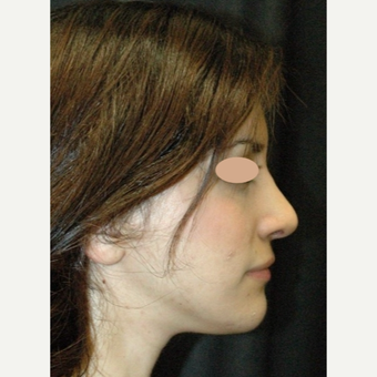 25-34 year old woman treated with Rhinoplasty after 3783402