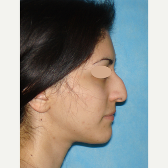 25-34 year old woman treated with Rhinoplasty before 3783402