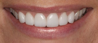 Porcelain Veneers after 1004989