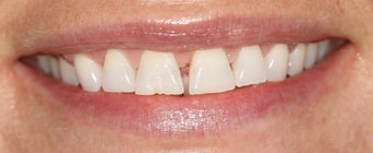 Porcelain Veneers before 1004989