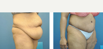 35-44 year old woman treated with Tummy Tuck before 3776543
