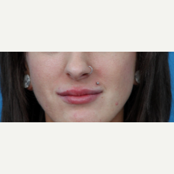 18-24 year old woman treated with Juvederm after 3226424