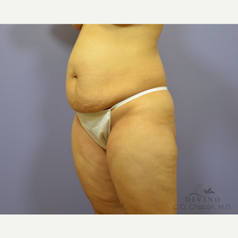 35-44 year old woman treated with Tummy Tuck before 3415644