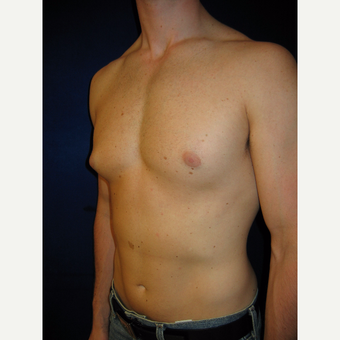 25-34 year old man treated with Male Breast Reduction before 3765962