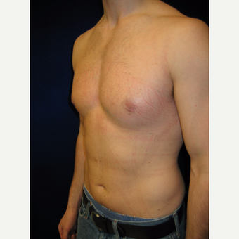 25-34 year old man treated with Male Breast Reduction after 3765962