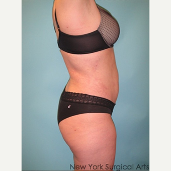 35-44 year old woman treated with Smart Lipo after 3437406