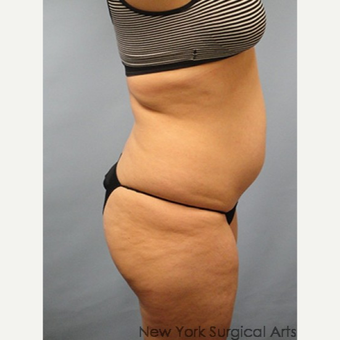 35-44 year old woman treated with Smart Lipo before 3437406