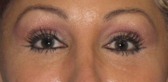 Lower Lid Blepharoplasty, with Fat Grafting up Upper and Lower Lids after 1047188