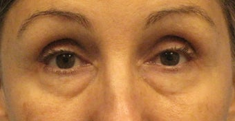 Lower Lid Blepharoplasty, with Fat Grafting up Upper and Lower Lids before 1047188