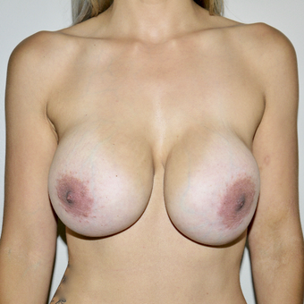 25-34 year old woman treated with Breast Implant Removal before 3545972
