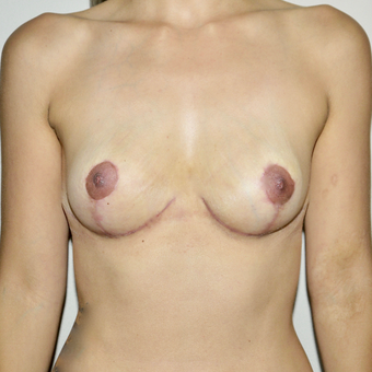 25-34 year old woman treated with Breast Implant Removal after 3545972