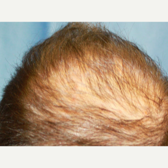 25-34 year old man treated with Platelet Rich Plasma (PRP) 1686744