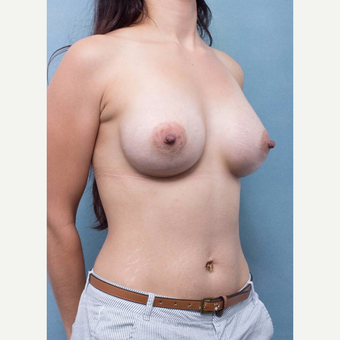25-34 year old woman treated with Breast Augmentation after 3177015
