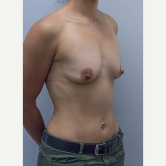 25-34 year old woman treated with Breast Augmentation before 3177015