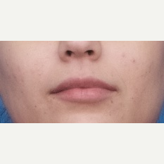 18-24 year old woman treated with Injectable Fillers after 3764298