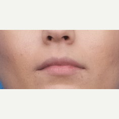 18-24 year old woman treated with Injectable Fillers before 3764298