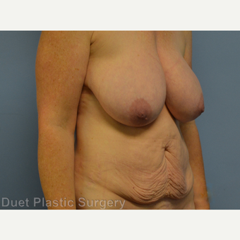 45-54 year old woman treated with Mommy Makeover before 3368083