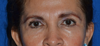 61 year old female seeking improvement of her lower eyelid appearance after 1039239