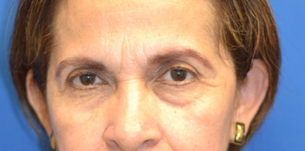 61 year old female seeking improvement of her lower eyelid appearance before 1039239