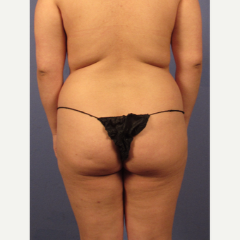 25-34 year old woman treated with Brazilian Butt Lift before 3158535