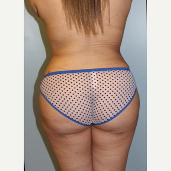 25-34 year old woman treated with Brazilian Butt Lift after 3158535