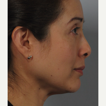 45-54 year old woman treated with Nose Surgery after 3265130