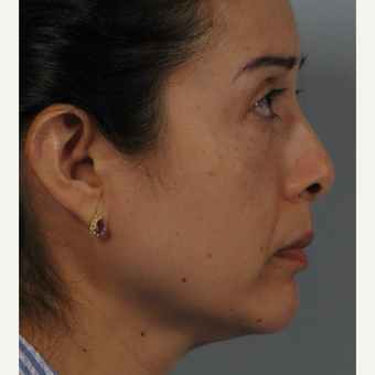 45-54 year old woman treated with Nose Surgery before 3265130