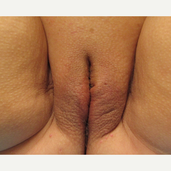50 year old woman pictured after second ThermiVa treatment after 3690379