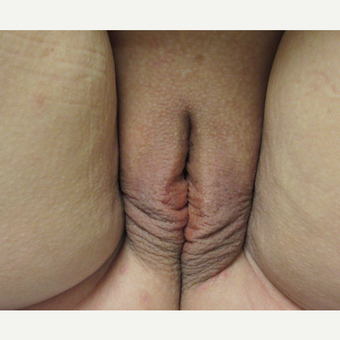 50 year old woman pictured after second ThermiVa treatment before 3690379