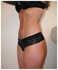 Liposulpture of abdomen, waist, flanks and inner thighs. after 334381