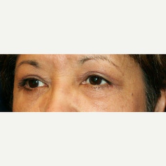 45-54 year old woman treated with Eyelid Surgery