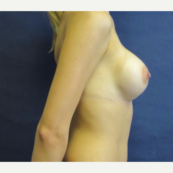25-34 year old woman treated with Breast Augmentation after 3743078