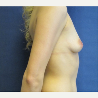 25-34 year old woman treated with Breast Augmentation before 3743078