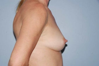 52 year old female, Autologous breast augmentation 1437912