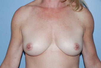 52 year old female, Autologous breast augmentation after 1437912