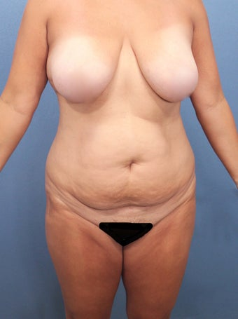 35-44 year old woman treated with Tummy Tuck 2526011