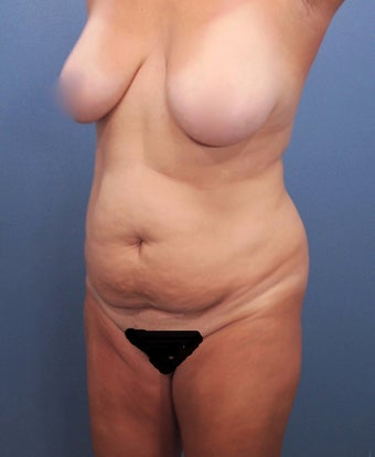 35-44 year old woman treated with Tummy Tuck before 2526011