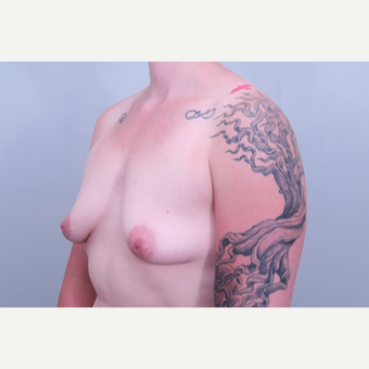 35-44 year old woman treated with Breast Lift before 3406370