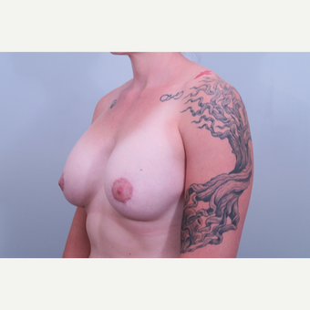 35-44 year old woman treated with Breast Lift after 3406370