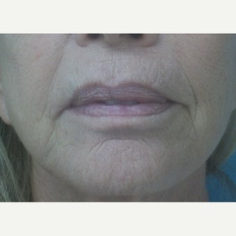 67 year old woman treated with InMode Fractora around mouth before 1983085