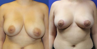 23yo, Vertical Breast Reduction (505g L, 355g R) before 1283527
