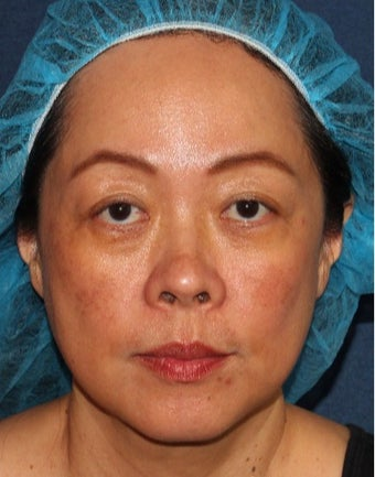 35-44 year old woman treated with Laser Treatment after 3623958