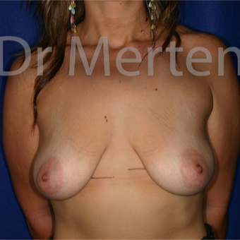 25-34 year old woman treated with Breast Lift with Implants before 3592261
