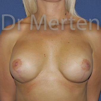 25-34 year old woman treated with Breast Lift with Implants after 3592261
