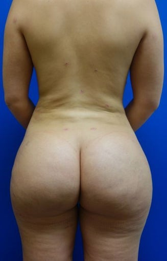 Brazilian Butt Lift  after 1224810