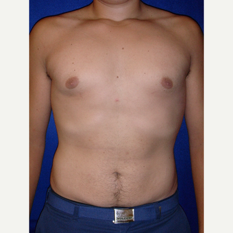 25-34 year old male treated with Male Breast Reduction after 3765996