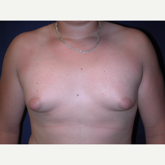 25-34 year old male treated with Male Breast Reduction before 3765996