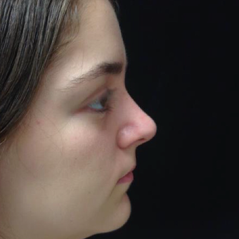 17 or under year old woman treated with Rhinoplasty after 3046968