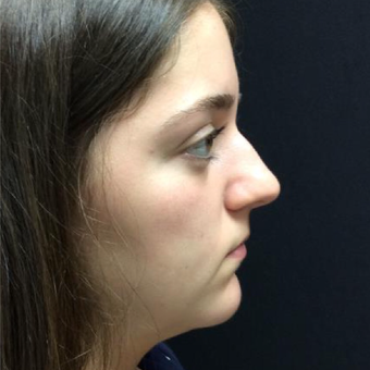 17 or under year old woman treated with Rhinoplasty before 3046968