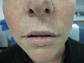 32 year old female treated with Restylane for lip augmentation before 1302243